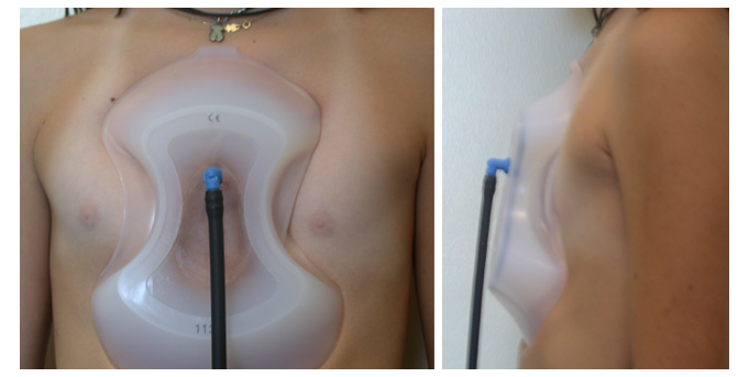 Treatment of Pectus with the suction bell