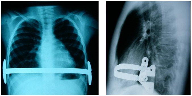 X-ray images of the bar