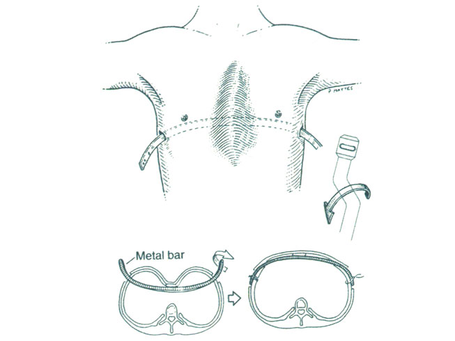 Nuss technique, from W. Lorenz Surgical catalogue